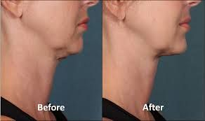 Kybella? What is it?
