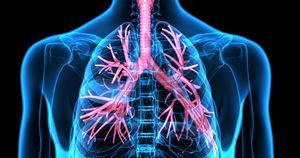 Algorithm aids in screening for pulmonary hypertension in patients with systemic sclerosis