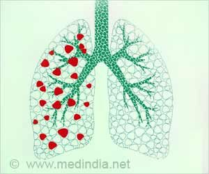 ICMR Starts Vaccine Trial to Prevent TB Among Close Contacts of Patient