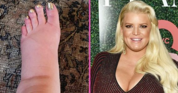 'I Spy. My Ankles!': Jessica Simpson Shares Post-Pregnancy Foot Pic
