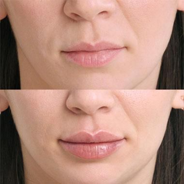 FDA Approves Restylane Kysse For Lip Agumentation