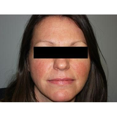 Dermatologists Urge Greater Focus on Facial Erythema in Rosacea Patients